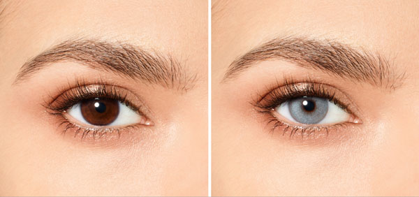 before after dark brown eyes